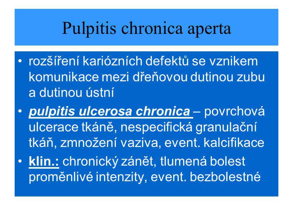 Pulpitis chronica aperta rozšíření kariózních defektů se vznikem komunikace mezi dřeňovou dutinou zubu a dutinou ústní pulpitis ulcerosa chronica – povrchová ulcerace tkáně, nespecifická granulační tkáň, zmnožení vaziva, event.