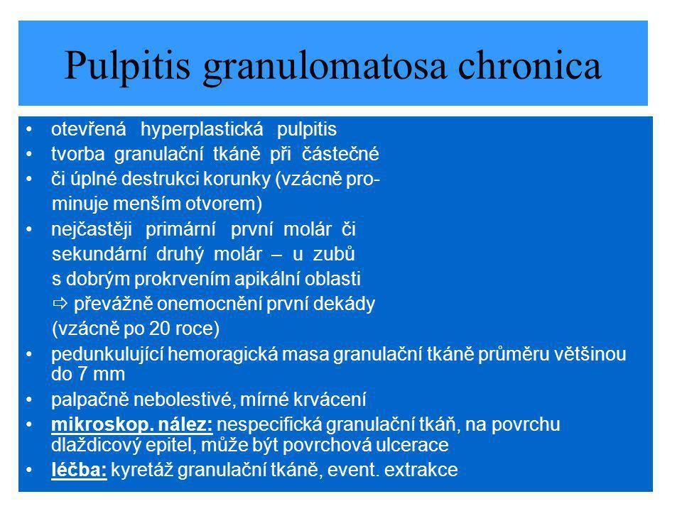 Pulpitis granulomatosa chronica otevřená hyperplastická pulpitis tvorba granulační tkáně při částečné či úplné destrukci korunky (vzácně pro- minuje menším otvorem) nejčastěji primární první molár či sekundární druhý molár – u zubů s dobrým prokrvením apikální oblasti  převážně onemocnění první dekády (vzácně po 20 roce) pedunkulující hemoragická masa granulační tkáně průměru většinou do 7 mm palpačně nebolestivé, mírné krvácení mikroskop.