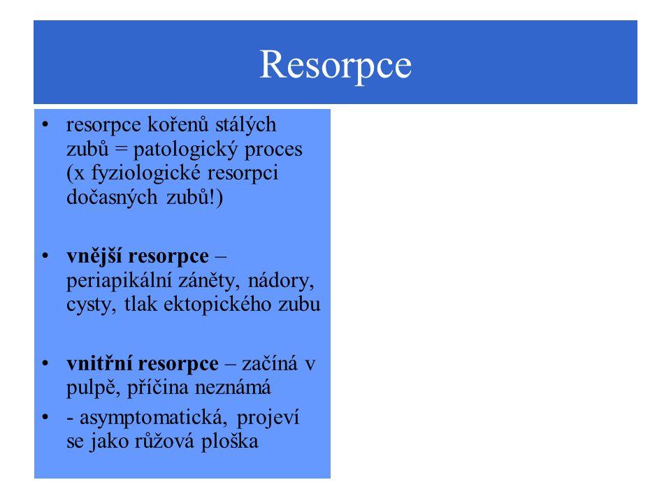 Resorpce resorpce kořenů stálých zubů = patologický proces (x fyziologické resorpci dočasných zubů!) vnější resorpce – periapikální záněty, nádory, cy