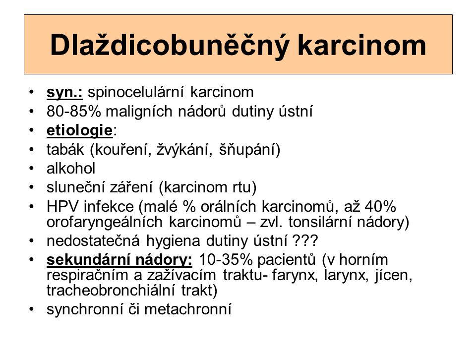Dlaždicobuněčný karcinom syn.: spinocelulární karcinom 80-85% maligních nádorů dutiny ústní etiologie: tabák (kouření, žvýkání, šňupání) alkohol slune