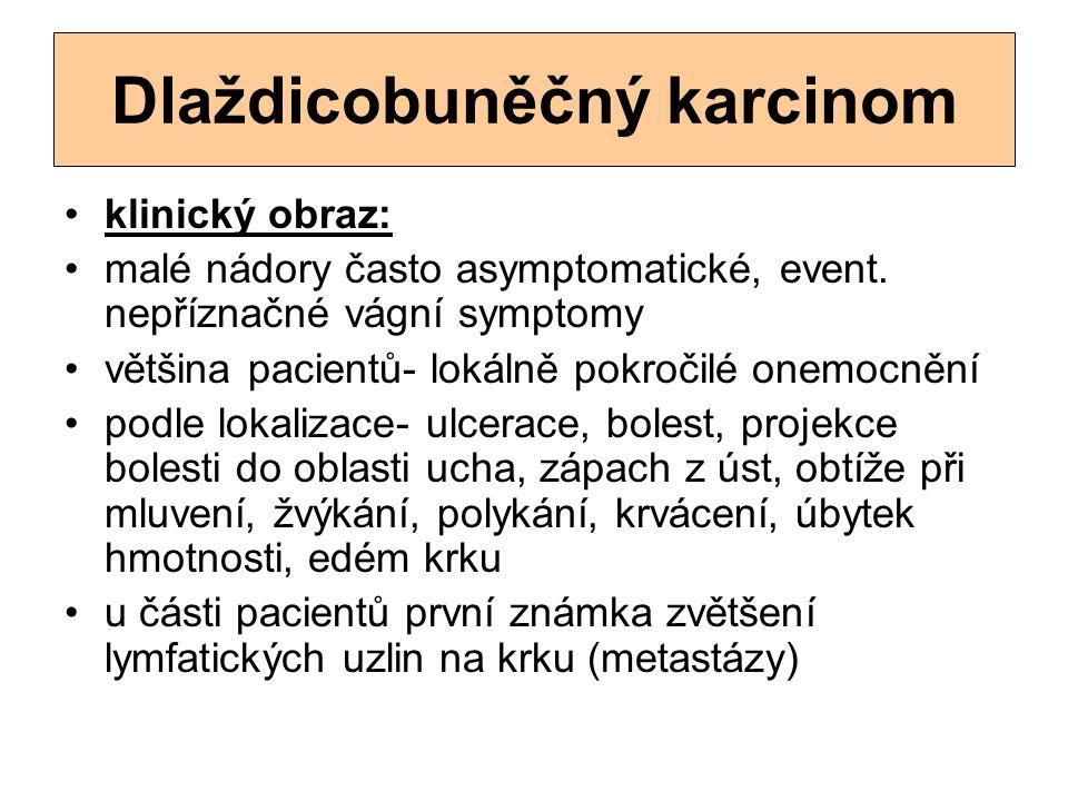 Dlaždicobuněčný karcinom klinický obraz: malé nádory často asymptomatické, event. nepříznačné vágní symptomy většina pacientů- lokálně pokročilé onemo