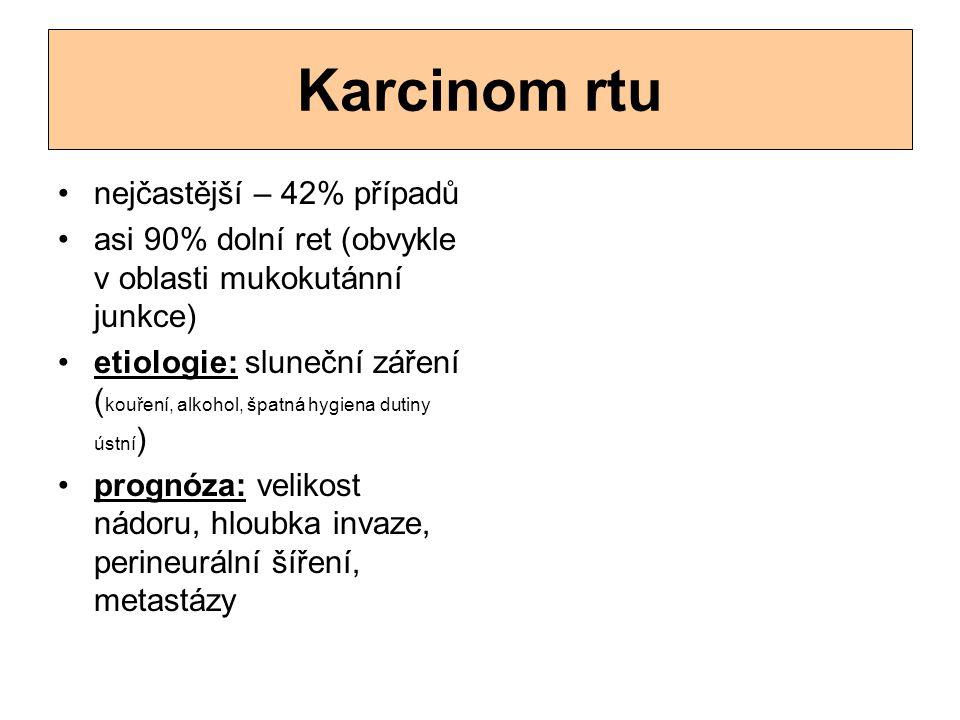 Karcinom rtu nejčastější – 42% případů asi 90% dolní ret (obvykle v oblasti mukokutánní junkce) etiologie: sluneční záření ( kouření, alkohol, špatná