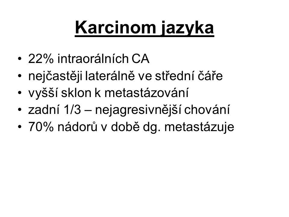 Karcinom jazyka 22% intraorálních CA nejčastěji laterálně ve střední čáře vyšší sklon k metastázování zadní 1/3 – nejagresivnější chování 70% nádorů v