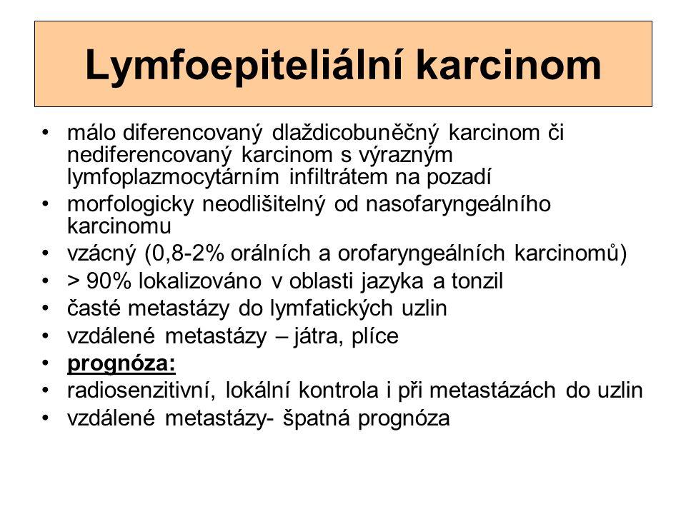 Lymfoepiteliální karcinom málo diferencovaný dlaždicobuněčný karcinom či nediferencovaný karcinom s výrazným lymfoplazmocytárním infiltrátem na pozadí