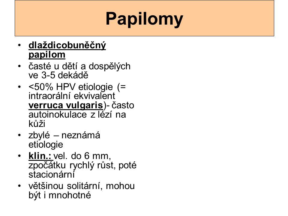 Papilomy dlaždicobuněčný papilom časté u dětí a dospělých ve 3-5 dekádě <50% HPV etiologie (= intraorální ekvivalent verruca vulgaris)- často autoinok