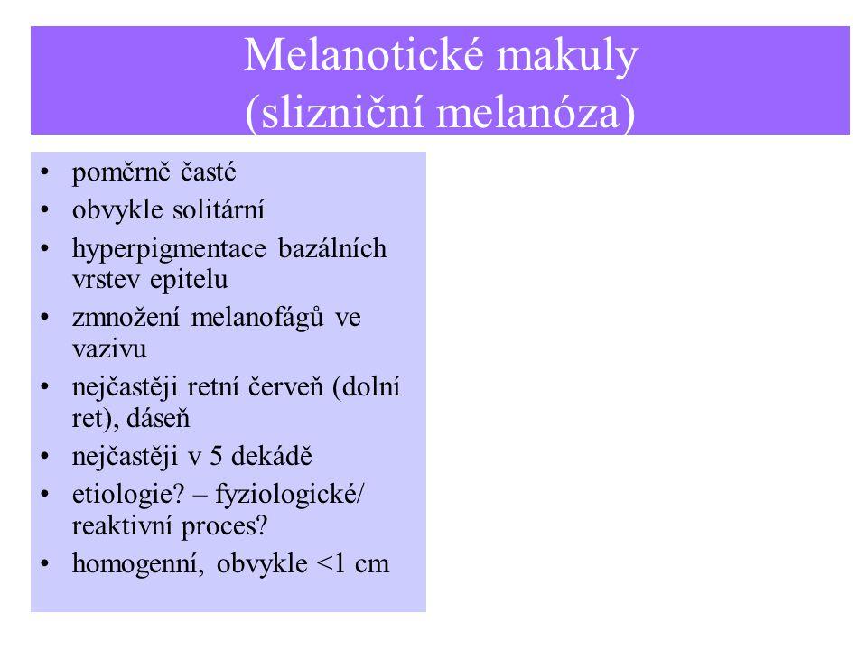 Melanotické makuly (slizniční melanóza) poměrně časté obvykle solitární hyperpigmentace bazálních vrstev epitelu zmnožení melanofágů ve vazivu nejčastěji retní červeň (dolní ret), dáseň nejčastěji v 5 dekádě etiologie.