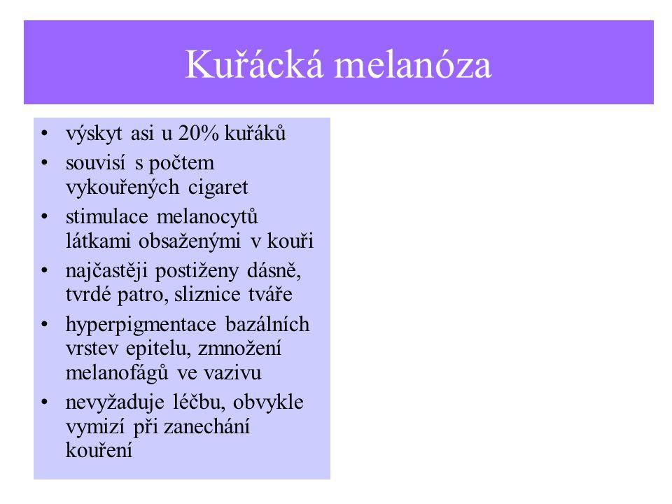 Kuřácká melanóza výskyt asi u 20% kuřáků souvisí s počtem vykouřených cigaret stimulace melanocytů látkami obsaženými v kouři najčastěji postiženy dásně, tvrdé patro, sliznice tváře hyperpigmentace bazálních vrstev epitelu, zmnožení melanofágů ve vazivu nevyžaduje léčbu, obvykle vymizí při zanechání kouření