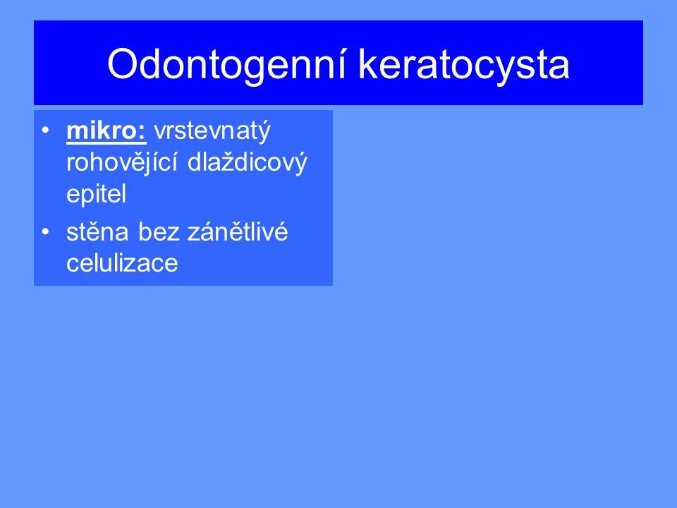 Odontogenní keratocysta mikro: vrstevnatý rohovějící dlaždicový epitel stěna bez zánětlivé celulizace
