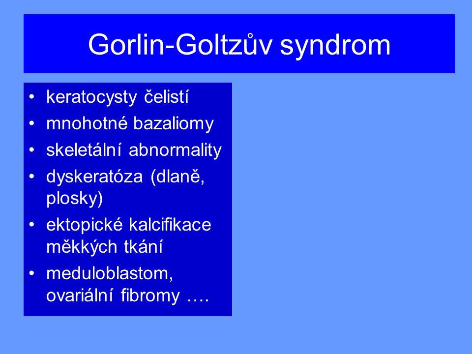 Gorlin-Goltzův syndrom keratocysty čelistí mnohotné bazaliomy skeletální abnormality dyskeratóza (dlaně, plosky) ektopické kalcifikace měkkých tkání meduloblastom, ovariální fibromy ….