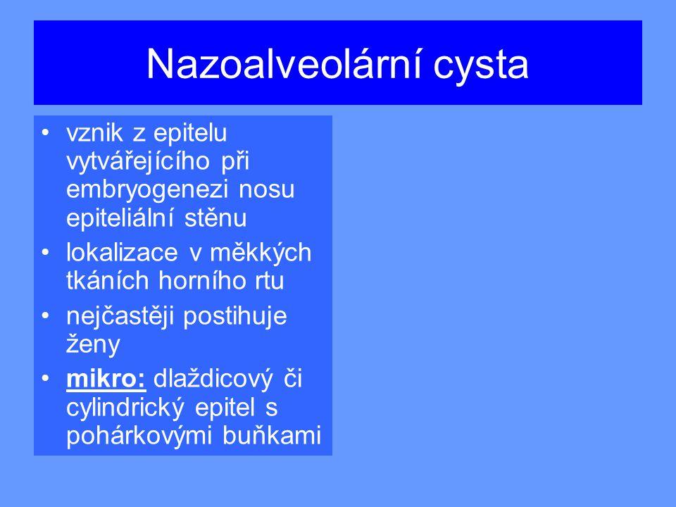Nazoalveolární cysta vznik z epitelu vytvářejícího při embryogenezi nosu epiteliální stěnu lokalizace v měkkých tkáních horního rtu nejčastěji postihuje ženy mikro: dlaždicový či cylindrický epitel s pohárkovými buňkami