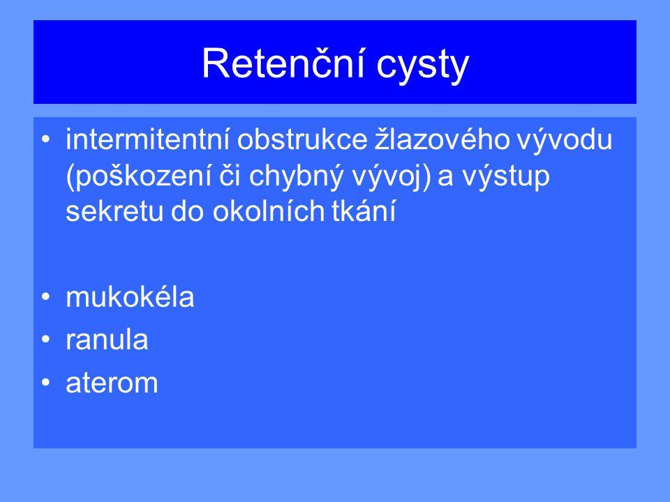 Retenční cysty intermitentní obstrukce žlazového vývodu (poškození či chybný vývoj) a výstup sekretu do okolních tkání mukokéla ranula aterom