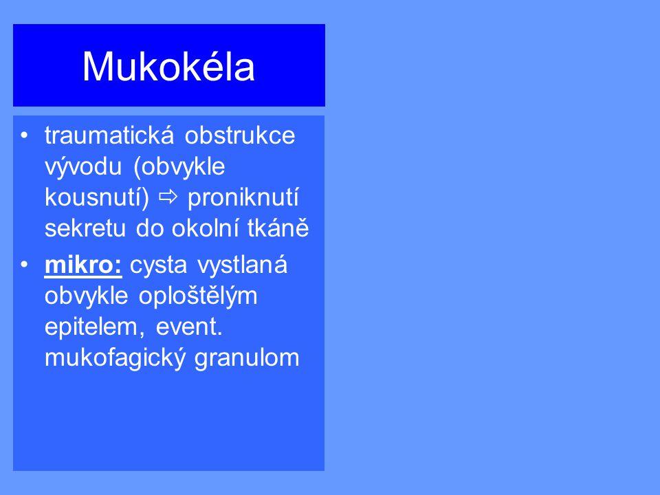 Mukokéla traumatická obstrukce vývodu (obvykle kousnutí)  proniknutí sekretu do okolní tkáně mikro: cysta vystlaná obvykle oploštělým epitelem, event.