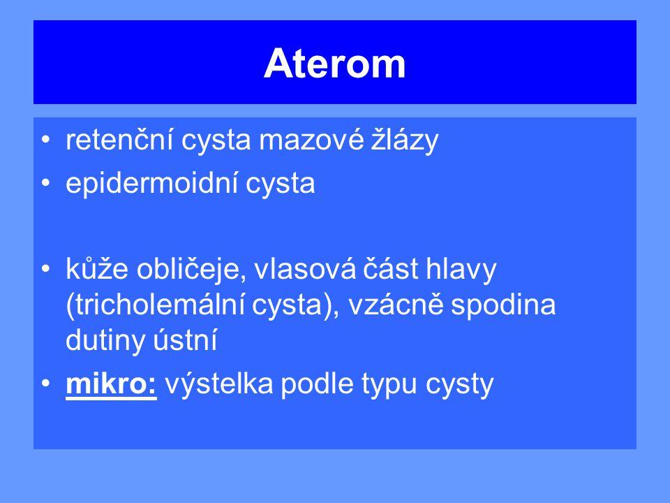Aterom retenční cysta mazové žlázy epidermoidní cysta kůže obličeje, vlasová část hlavy (tricholemální cysta), vzácně spodina dutiny ústní mikro: výstelka podle typu cysty