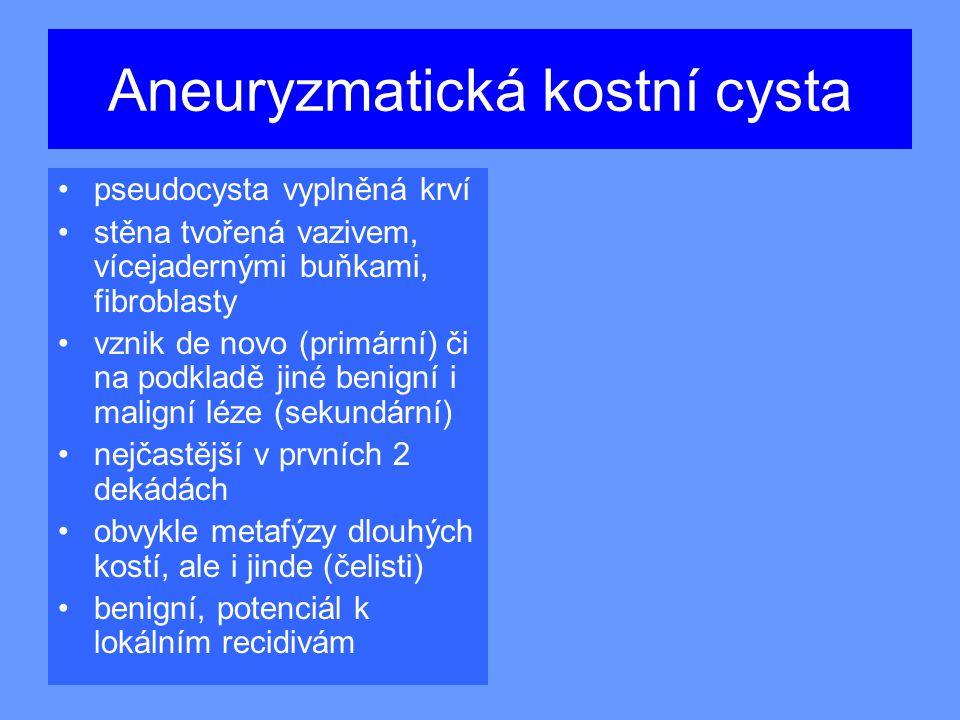 Aneuryzmatická kostní cysta pseudocysta vyplněná krví stěna tvořená vazivem, vícejadernými buňkami, fibroblasty vznik de novo (primární) či na podkladě jiné benigní i maligní léze (sekundární) nejčastější v prvních 2 dekádách obvykle metafýzy dlouhých kostí, ale i jinde (čelisti) benigní, potenciál k lokálním recidivám