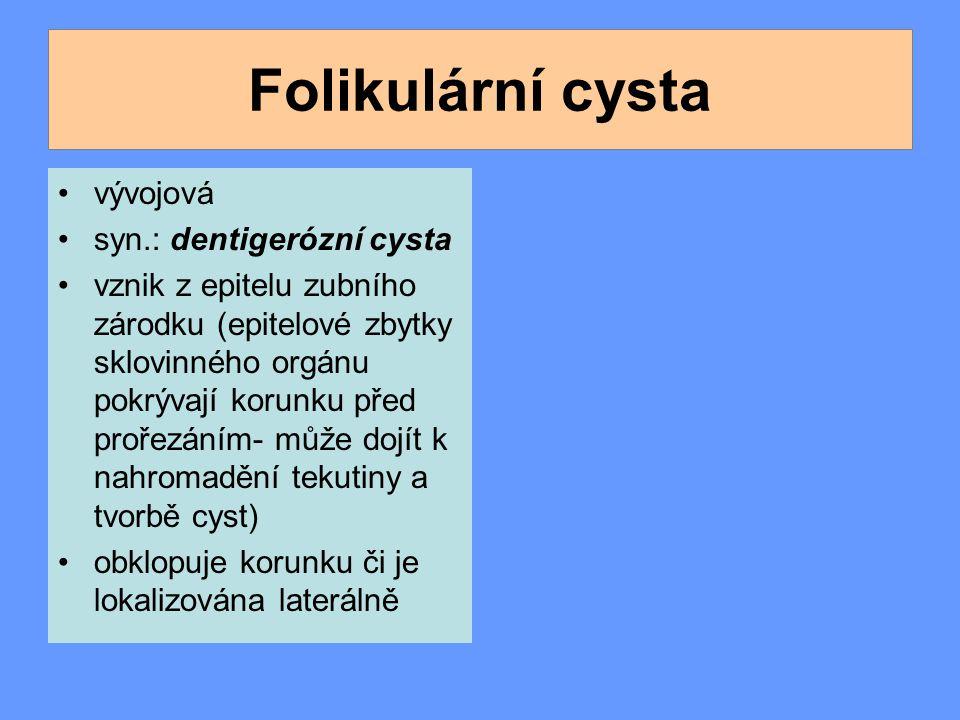 Folikulární cysta vývojová syn.: dentigerózní cysta vznik z epitelu zubního zárodku (epitelové zbytky sklovinného orgánu pokrývají korunku před prořezáním- může dojít k nahromadění tekutiny a tvorbě cyst) obklopuje korunku či je lokalizována laterálně