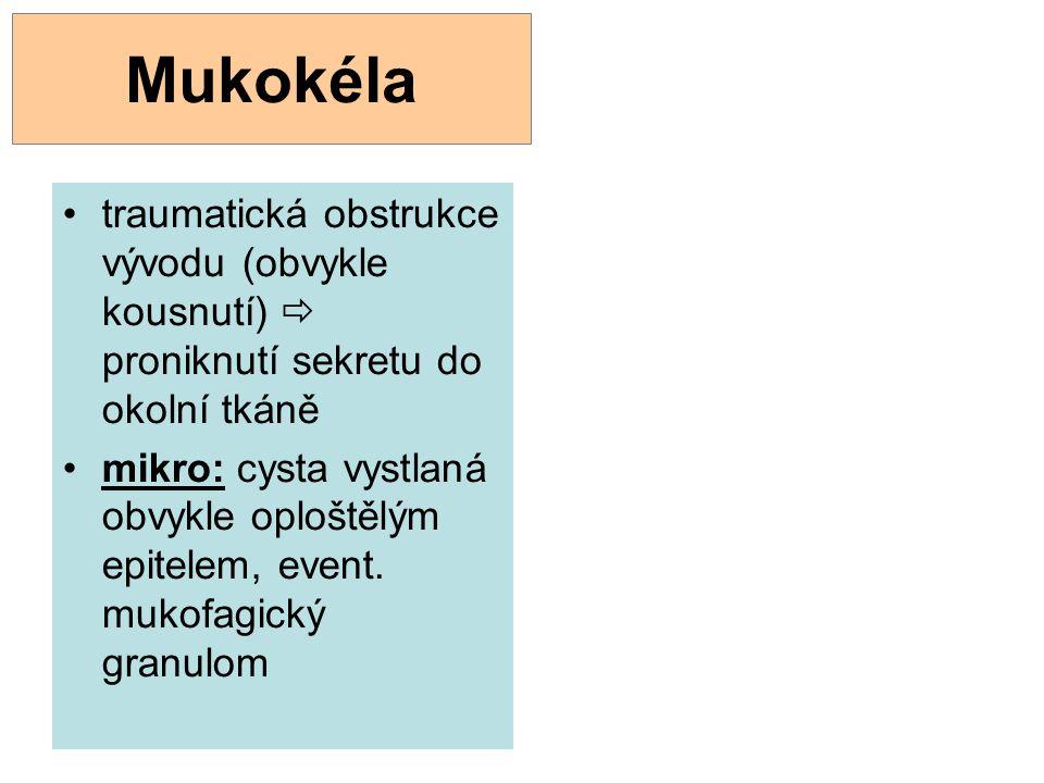Mukokéla traumatická obstrukce vývodu (obvykle kousnutí)  proniknutí sekretu do okolní tkáně mikro: cysta vystlaná obvykle oploštělým epitelem, event
