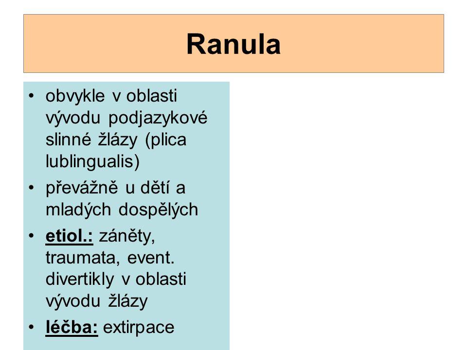 Ranula obvykle v oblasti vývodu podjazykové slinné žlázy (plica lublingualis) převážně u dětí a mladých dospělých etiol.: záněty, traumata, event. di
