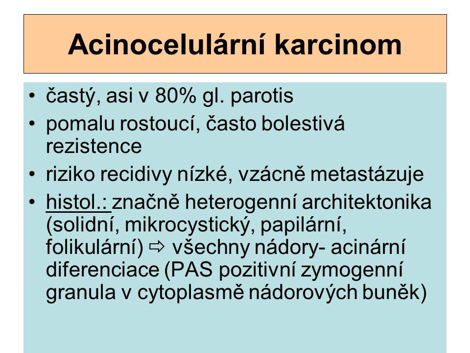 Acinocelulární karcinom častý, asi v 80% gl. parotis pomalu rostoucí, často bolestivá rezistence riziko recidivy nízké, vzácně metastázuje histol.: zn