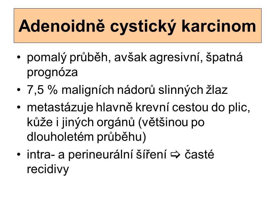 Adenoidně cystický karcinom pomalý průběh, avšak agresivní, špatná prognóza 7,5 % maligních nádorů slinných žlaz metastázuje hlavně krevní cestou do p