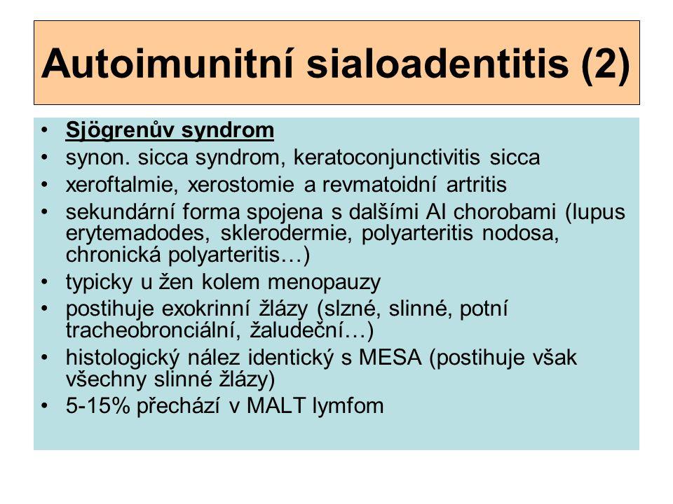Autoimunitní sialoadentitis (2) Sjögrenův syndrom synon. sicca syndrom, keratoconjunctivitis sicca xeroftalmie, xerostomie a revmatoidní artritis sek
