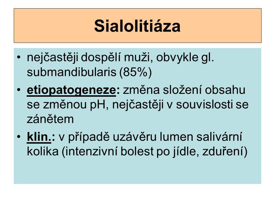 Sialolitiáza nejčastěji dospělí muži, obvykle gl. submandibularis (85%) etiopatogeneze: změna složení obsahu se změnou pH, nejčastěji v souvislosti s