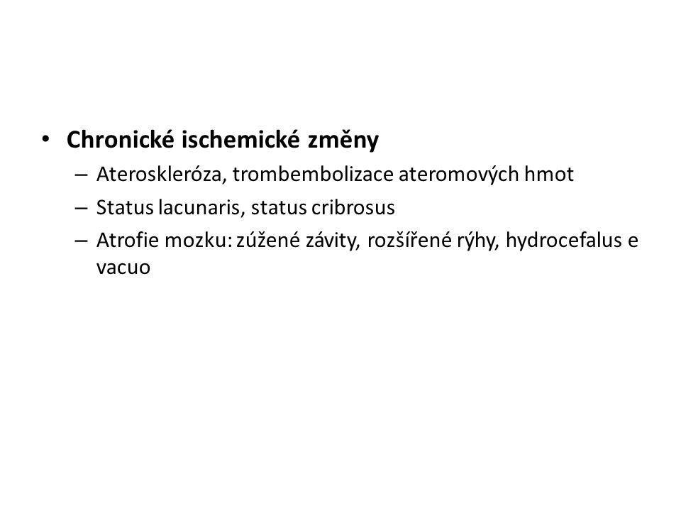 Chronické ischemické změny – Ateroskleróza, trombembolizace ateromových hmot – Status lacunaris, status cribrosus – Atrofie mozku: zúžené závity, rozš