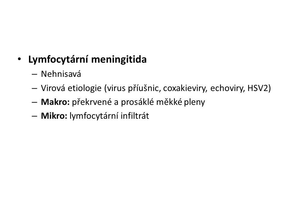 Lymfocytární meningitida – Nehnisavá – Virová etiologie (virus příušnic, coxakieviry, echoviry, HSV2) – Makro: překrvené a prosáklé měkké pleny – Mikr