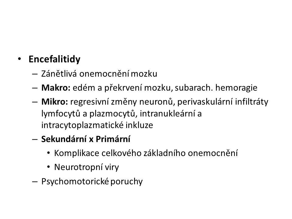 Encefalitidy – Zánětlivá onemocnění mozku – Makro: edém a překrvení mozku, subarach. hemoragie – Mikro: regresivní změny neuronů, perivaskulární infil