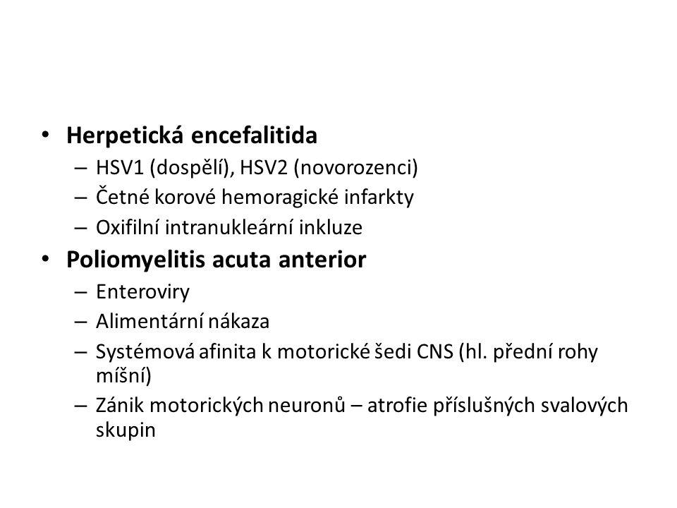 Herpetická encefalitida – HSV1 (dospělí), HSV2 (novorozenci) – Četné korové hemoragické infarkty – Oxifilní intranukleární inkluze Poliomyelitis acuta