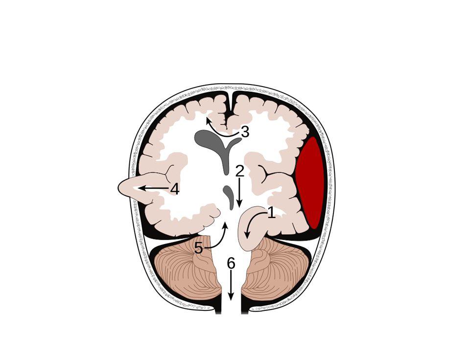 Nitrolební krvácení Epidurální krvácení – Mezi lebkou a durou mater – Traumatický původ, fraktura lebky, ruptura a.