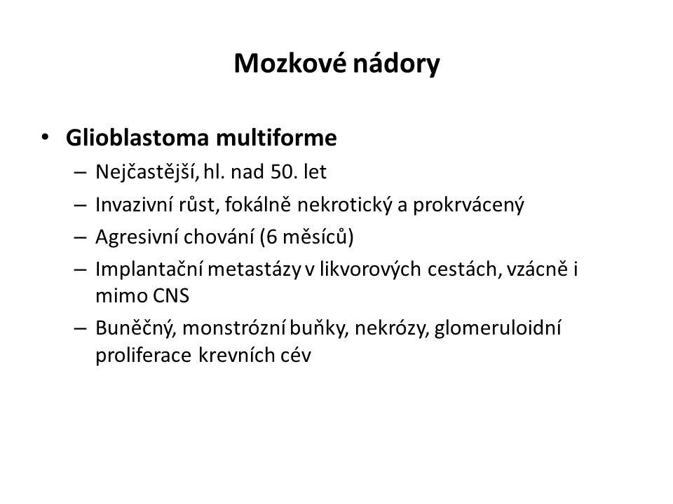 Mozkové nádory Glioblastoma multiforme – Nejčastější, hl. nad 50. let – Invazivní růst, fokálně nekrotický a prokrvácený – Agresivní chování (6 měsíců