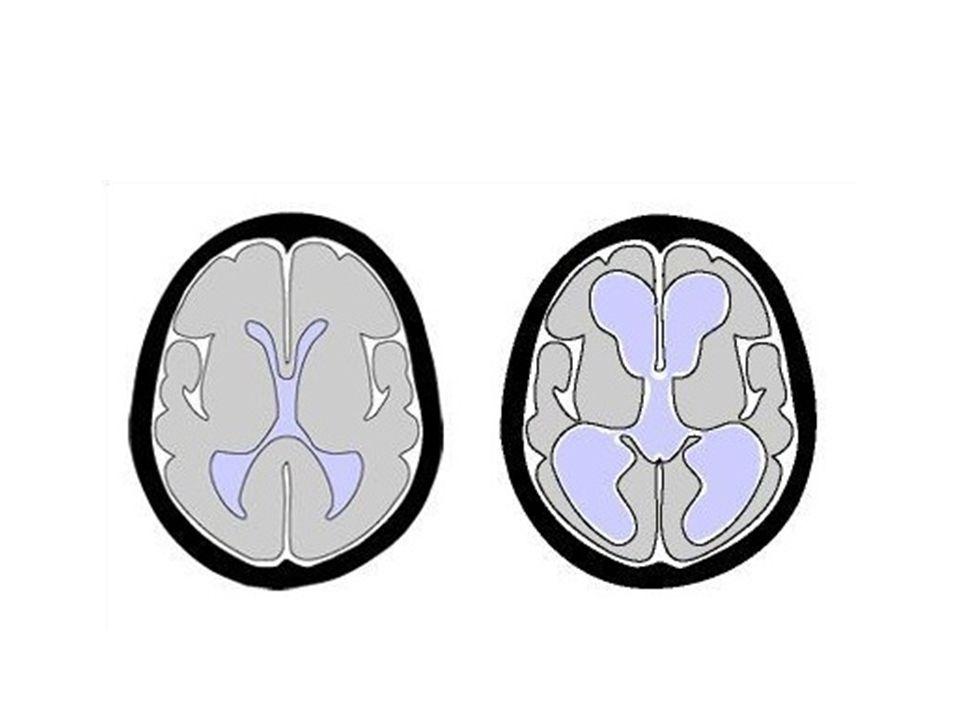 Amyotrofická laterální skleróza – Úbytek motorických neuronů předních rohů míšních – Progresivní svalové atrofie