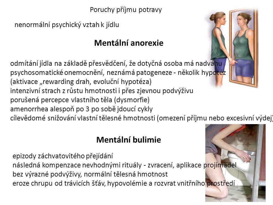 Poruchy příjmu potravy nenormální psychický vztah k jídlu Mentální anorexie odmítání jídla na základě přesvědčení, že dotyčná osoba má nadváhu psychos