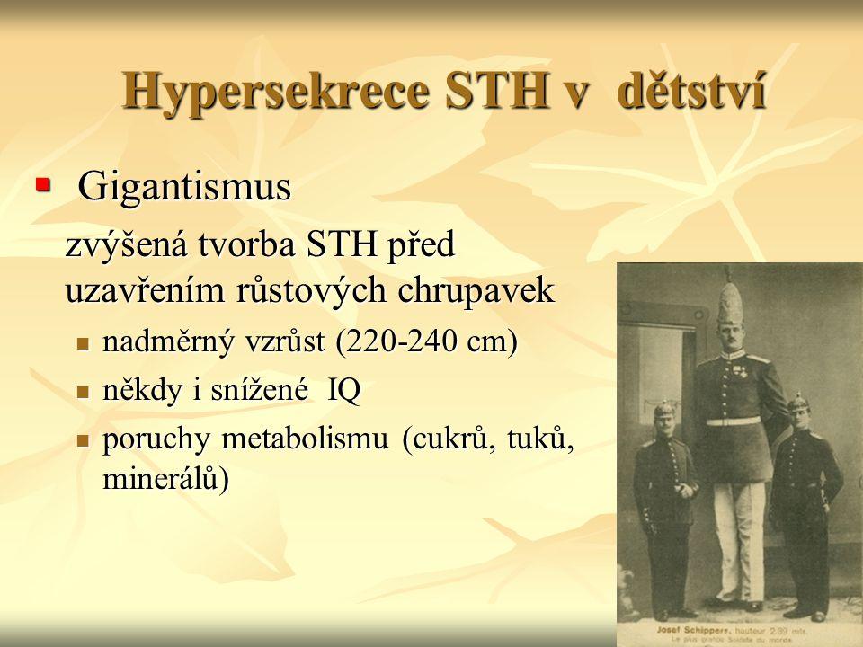 Hypersekrece STH v dětství  Gigantismus zvýšená tvorba STH před uzavřením růstových chrupavek nadměrný vzrůst (220-240 cm) nadměrný vzrůst (220-240 c