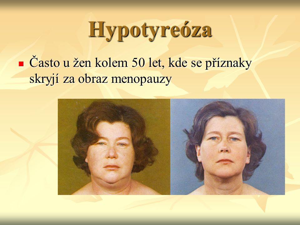 Hypotyreóza Často u žen kolem 50 let, kde se příznaky skryjí za obraz menopauzy Často u žen kolem 50 let, kde se příznaky skryjí za obraz menopauzy