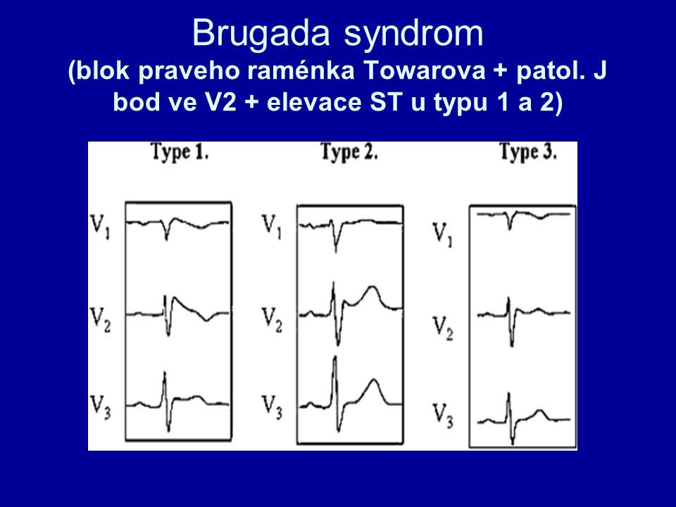 Brugada syndrom (blok praveho raménka Towarova + patol. J bod ve V2 + elevace ST u typu 1 a 2)