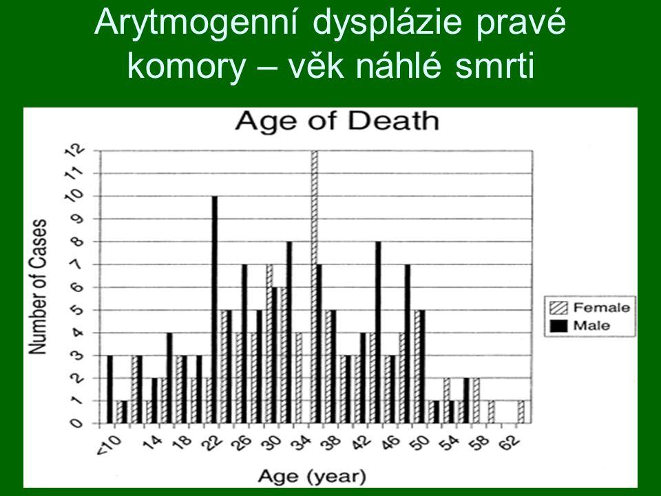 Arytmogenní dysplázie pravé komory – věk náhlé smrti