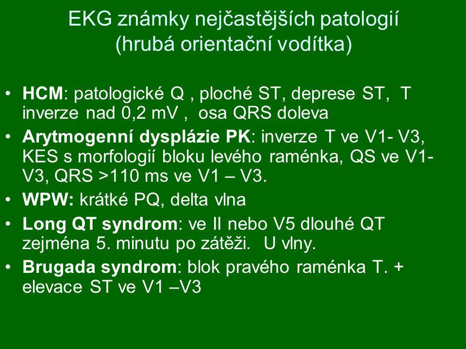 EKG známky nejčastějších patologií (hrubá orientační vodítka) HCM: patologické Q, ploché ST, deprese ST, T inverze nad 0,2 mV, osa QRS doleva Arytmogenní dysplázie PK: inverze T ve V1- V3, KES s morfologií bloku levého raménka, QS ve V1- V3, QRS >110 ms ve V1 – V3.