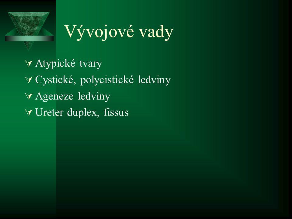 Vývojové vady  Atypické tvary  Cystické, polycistické ledviny  Ageneze ledviny  Ureter duplex, fissus