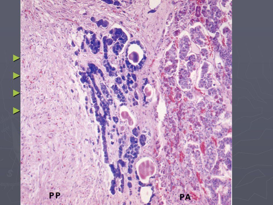 Pars intermedia ► rudimentární ► buňky tvoří trámce ► bazofilní bb ► může být vytvořen váček