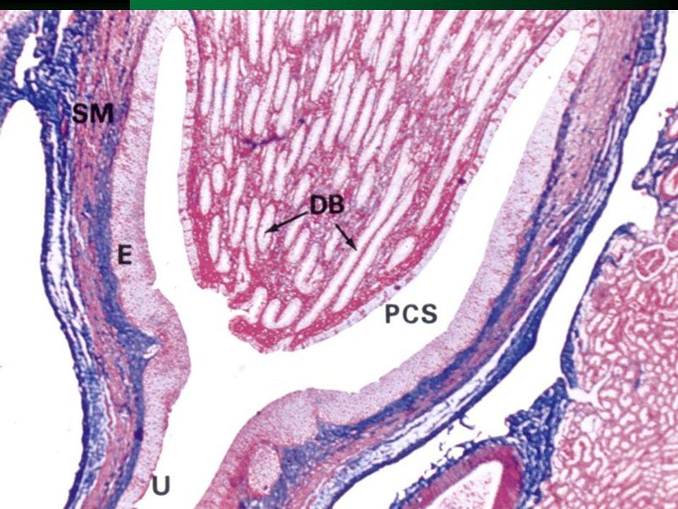 Ledvinná pánvička a kalichy  2-3 kalichy v každé pánvičce  2-3 vrstevný přechodní epitel  hl. svalové buňky uspořádány spirálovitě