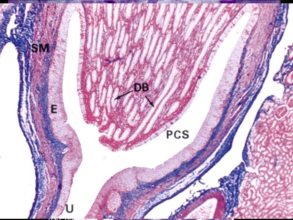 Odvodné cesty intrarenální  Sběrací kanálky (Tubulli colligentes) –jednovrstevný kubický epitel –kulatá jádra, světlá cytoplasma  Papilární vývody (Ductus papillares Bellini) –jednovrstevný cylindrický epitel –světlá cytoplasma –ústí na papillae renalis (area cribrosa)  regulovaná resorpce vody (ADH)