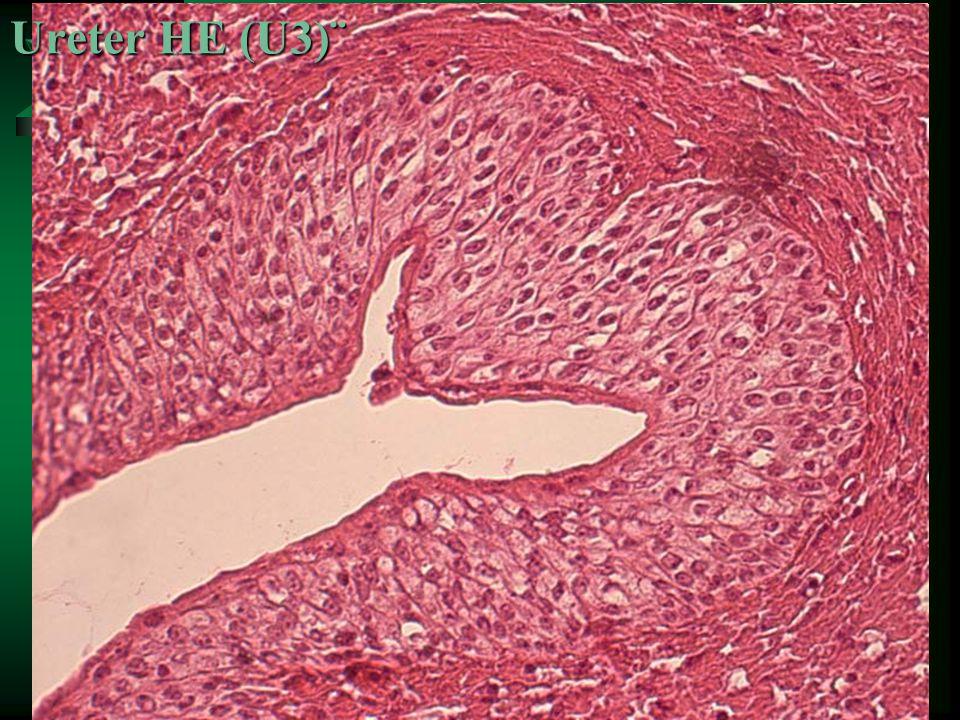 Ureter HE (U3)¨