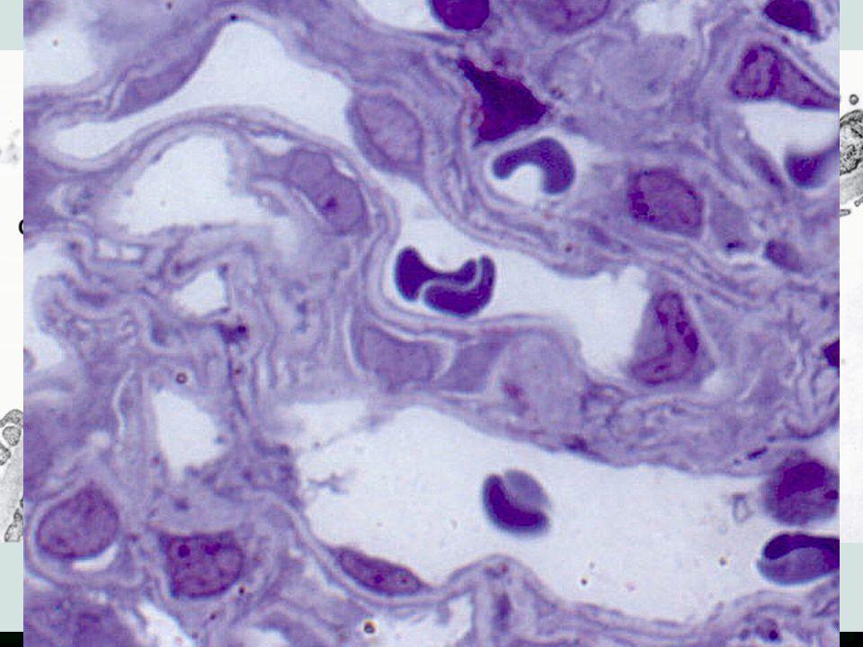 Renální tělísko (Malpighi)  Bowmanovo pouzdro –parietální list (plochý jednovrstevný epitel) –viscerální list (podocyty - pedikly)  Glomerulum –a.