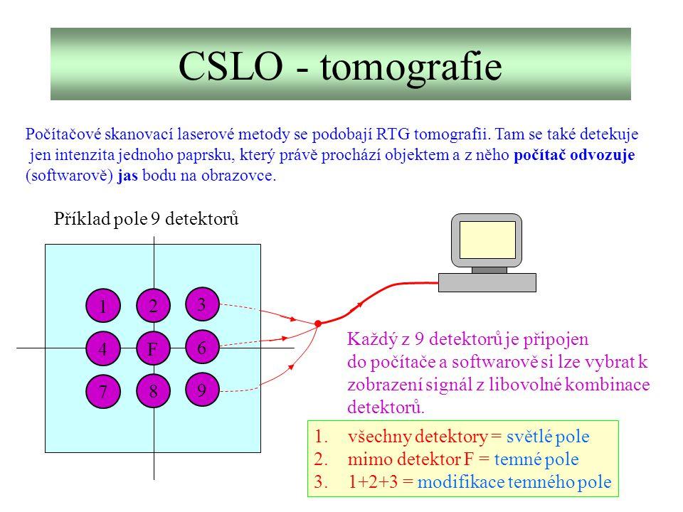 CSLO - tomografie 7 4 1 8 2 9 6 3 F Příklad pole 9 detektorů Každý z 9 detektorů je připojen do počítače a softwarově si lze vybrat k zobrazení signál