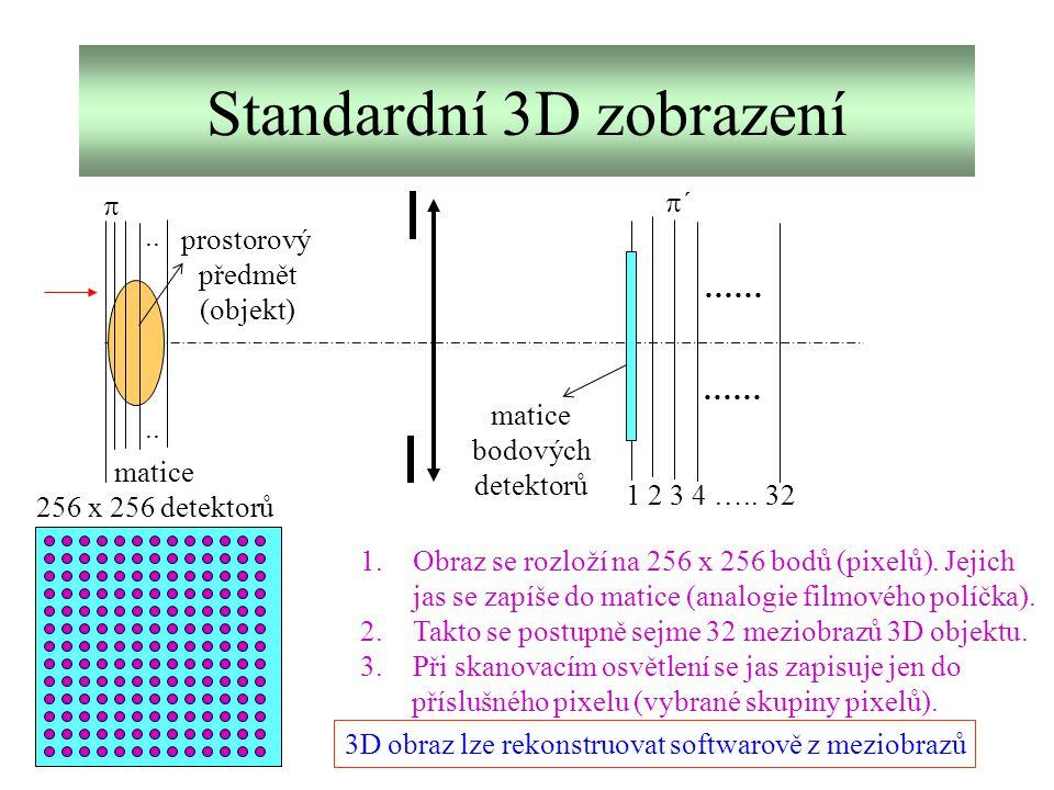 Standardní 3D zobrazení ……  ´´ 1 2 3 4 ….. 32 matice bodových detektorů prostorový předmět (objekt) matice 256 x 256 detektorů 1.Obraz se rozloží n