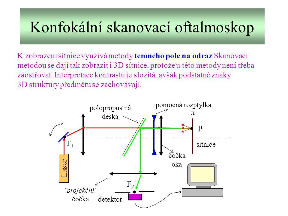 Konfokální skanovací oftalmoskop K zobrazení sítnice využívá metody temného pole na odraz Skanovací metodou se dají tak zobrazit i 3D sítnice, protože