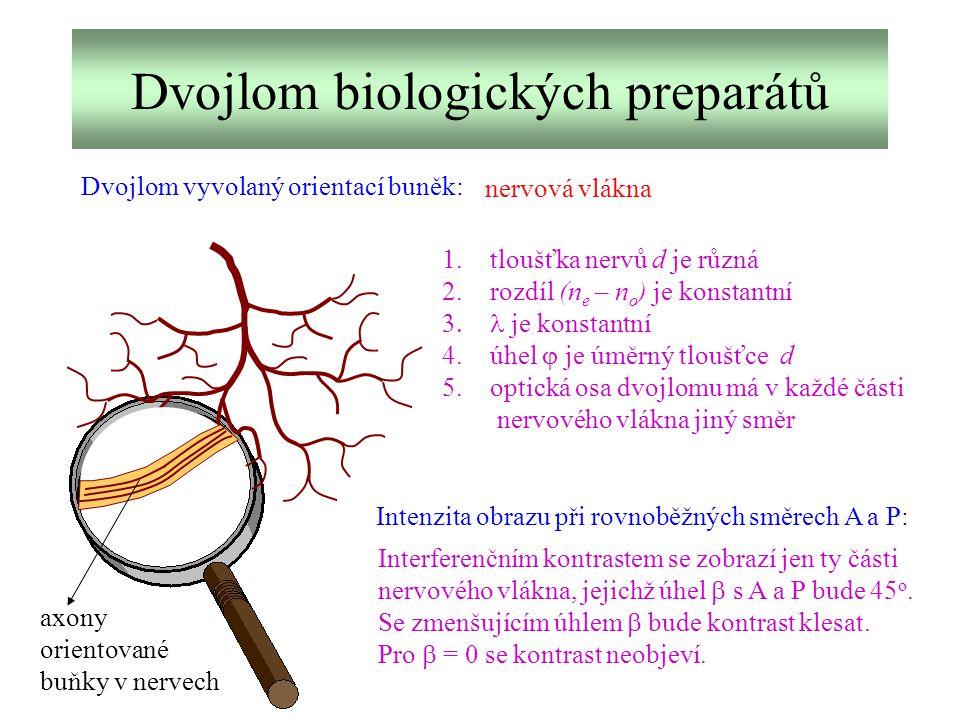 Dvojlom biologických preparátů Dvojlom vyvolaný orientací buněk: nervová vlákna axony orientované buňky v nervech 1.tloušťka nervů d je různá 2.rozdíl