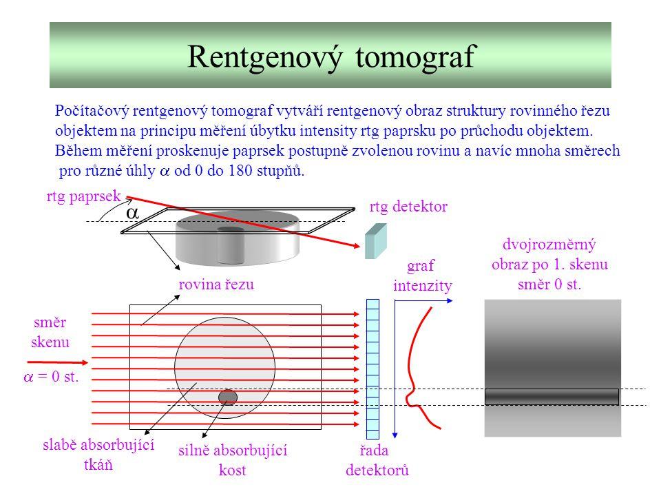 Rentgenový tomograf Počítačový rentgenový tomograf vytváří rentgenový obraz struktury rovinného řezu objektem na principu měření úbytku intensity rtg