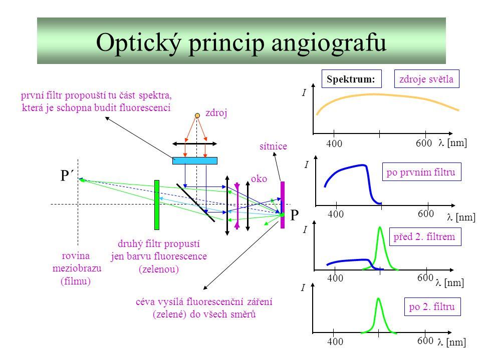 Optický princip angiografu rovina meziobrazu (filmu) druhý filtr propustí jen barvu fluorescence (zelenou) první filtr propouští tu část spektra, kter